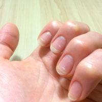 爪に出る白い点